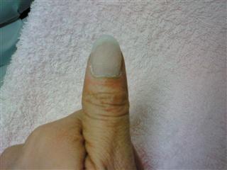 爪の補修①