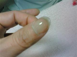 爪の補修③