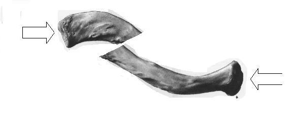 鎖骨転位図