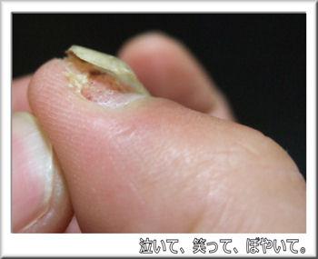 爪が~!!.jpg