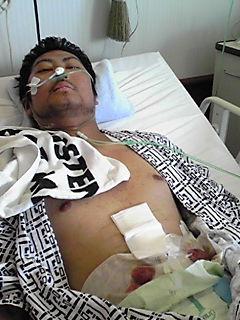 2009大腸手術後1