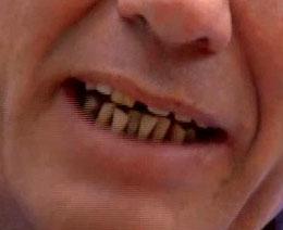 Jon Dee Grahamの歯