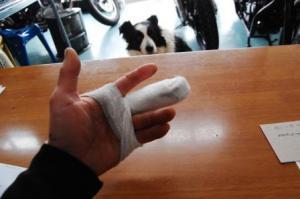 指骨折-2