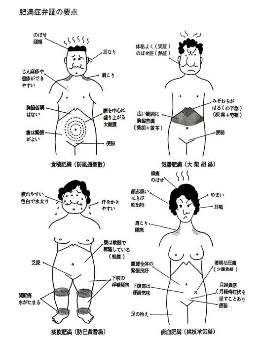 漢方の肥満