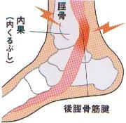 kkurubushi3.jpg