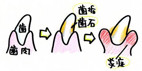 歯垢→歯石