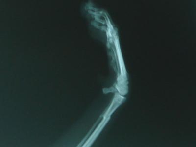 ケンの骨折写真2