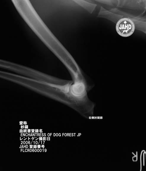 右側肘関節