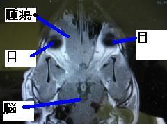 佐藤サム MRI