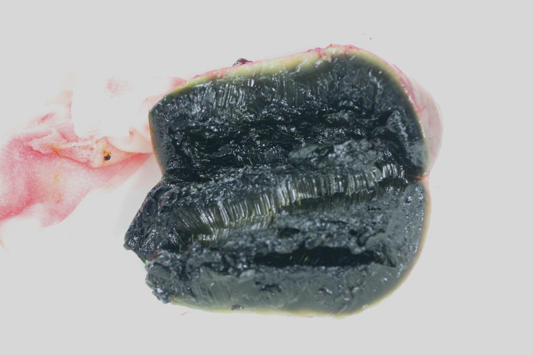 胆嚢 割面