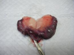 ウサギの子宮腺癌 病理