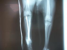 仔犬の骨折 術後1