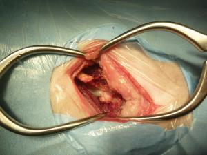 脊髄腫瘍 ベントラル
