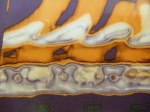 脊椎炎 CT2