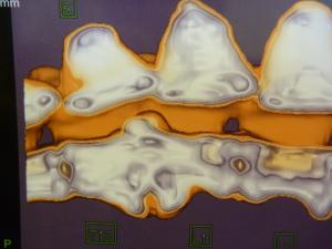 脊椎炎 CT3