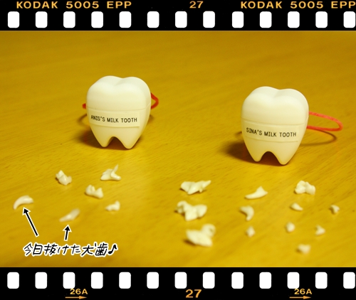 090531犬歯げっとぉ