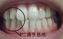 ヤニ歯生息地帯