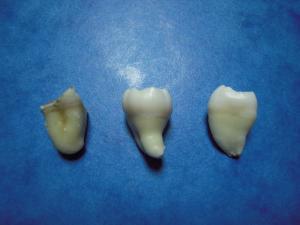 22日 歯コレクション (3)