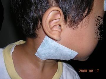 予防接種 腫れ 冷えピタ